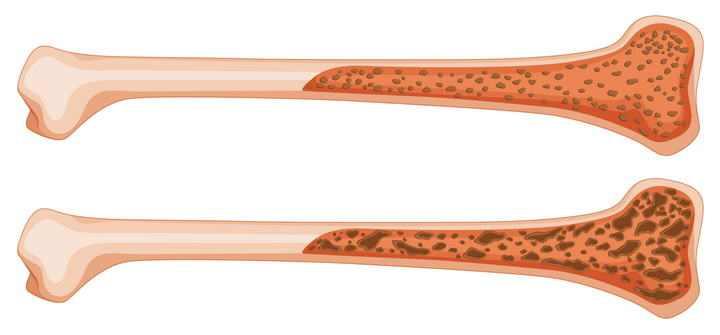 人体组织器官骨头骨坏死病示意图免扣图片素材