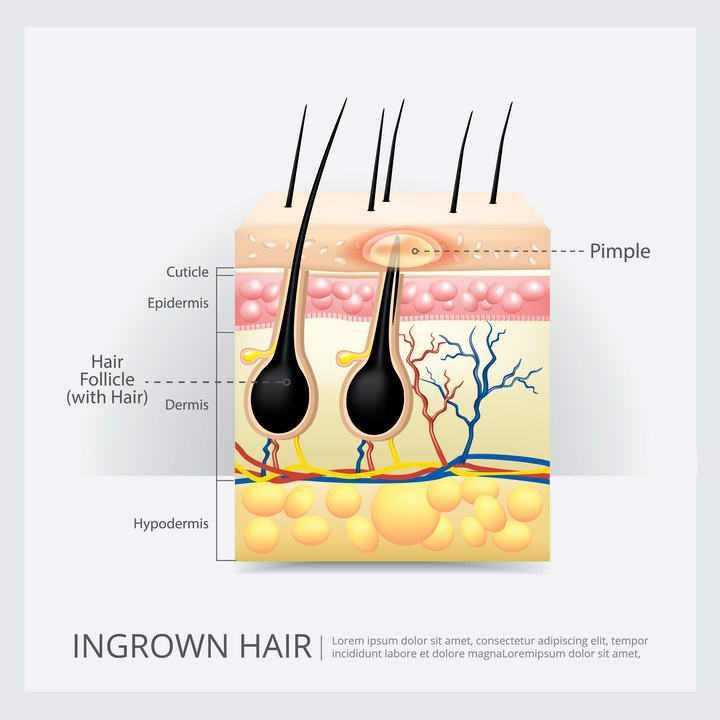人体器官组织皮肤毛囊解剖图免扣图片素材