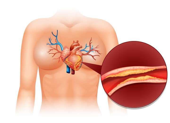 人体心脏心肌梗塞血管阻塞示意图医疗医学疾病配图图片免抠素材