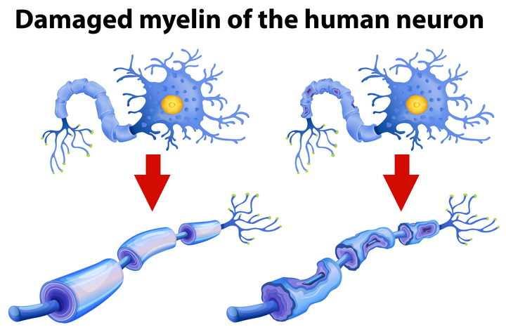 人体神经系统的神经元受损对比图免抠矢量图片素材