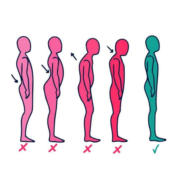 4种错误站姿和正确站立姿势对比图图片免抠素材
