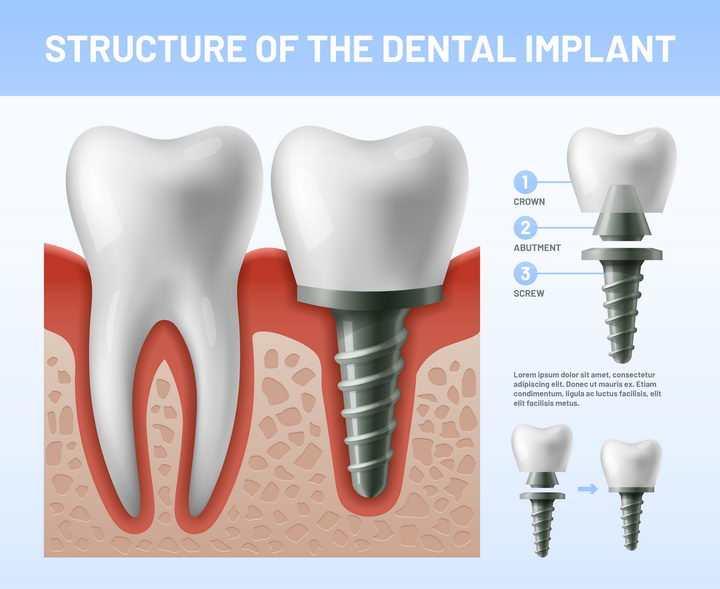 假牙植牙牙齿保健医疗图片免抠矢量图