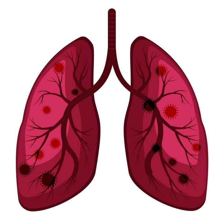 新型冠状病毒导致的肺炎png图片免抠素材