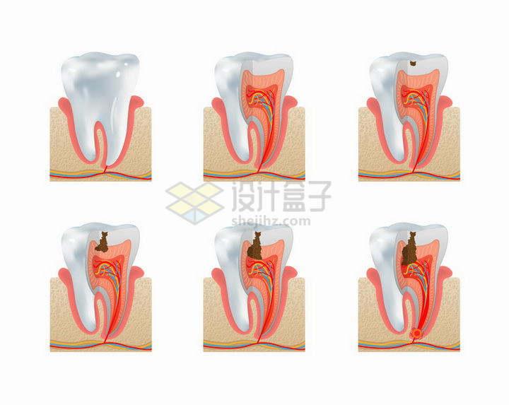 龋齿蛀牙龋洞发育流程图牙齿保健png图片免抠矢量素材