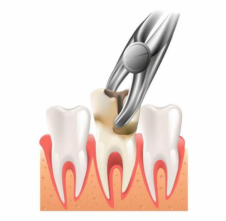 逼真的3D立体风格拔牙手术png图片免抠矢量素材