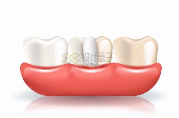 牙齿清洁牙科洗牙3D广告配图png图片素材