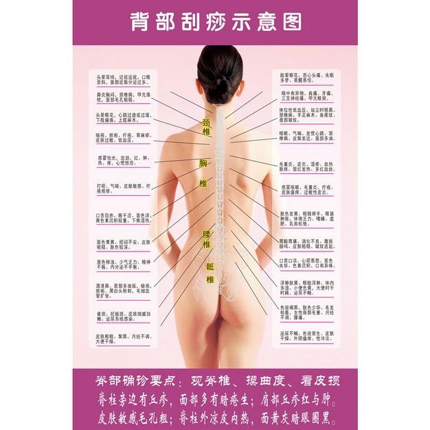 中医背部刮痧示意图437643图片素材 健康医疗-第1张