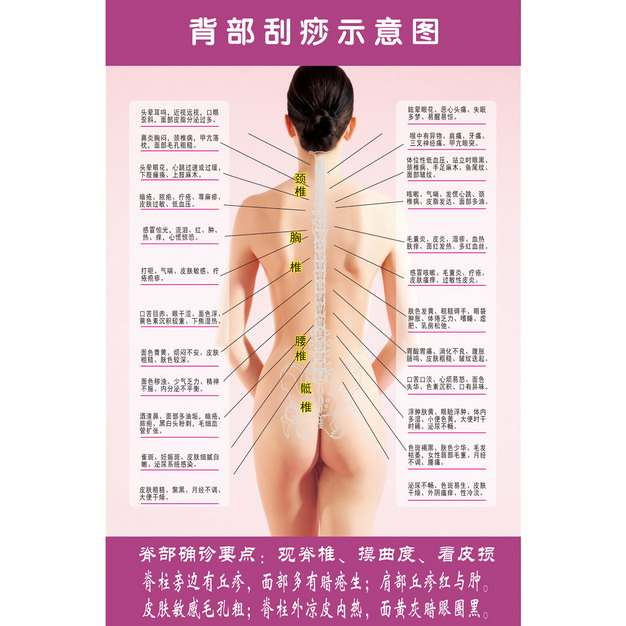 中医背部刮痧示意图437643图片素材