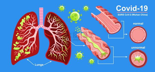 新型冠状病毒对人体肺部的影响插画png图片素材