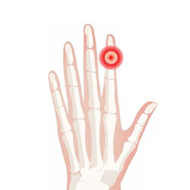 手指肿块类风湿性关节炎骨头疼插画700044png图片素材