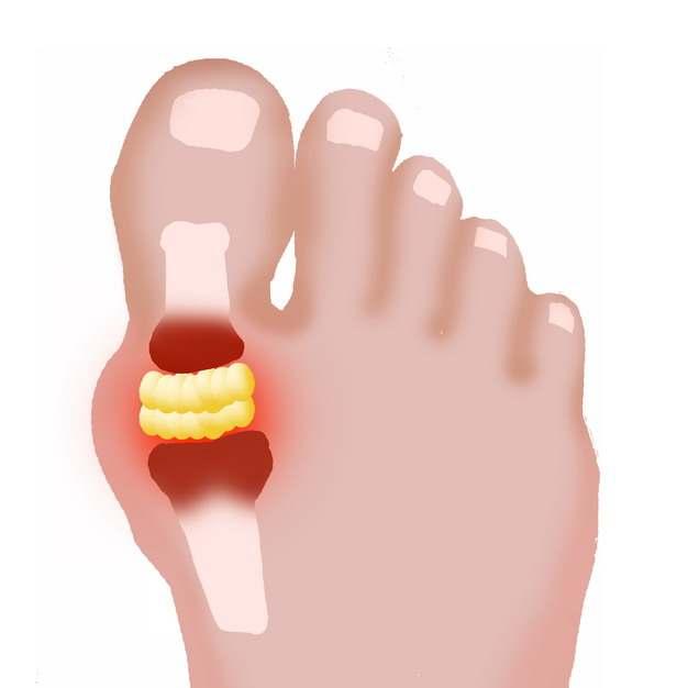 脚趾肿块类风湿性关节炎骨头疼插画710774png图片素材