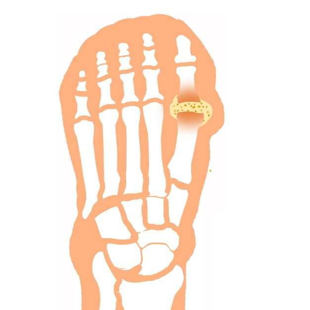 脚指头肿块类风湿性关节炎骨头疼插画131677png图片素材