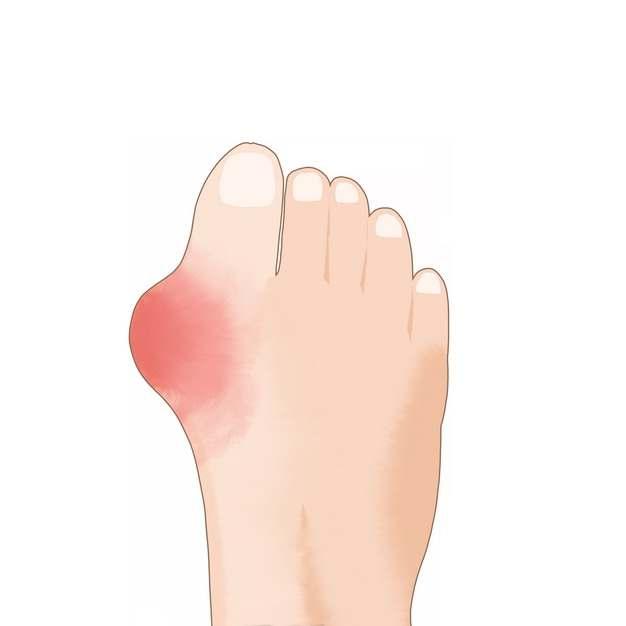 脚上肿块类风湿性关节炎骨头疼插画784230png图片素材