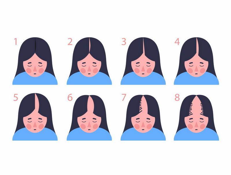 女性脱发等级示意图1222334图片免抠素材 健康医疗-第1张