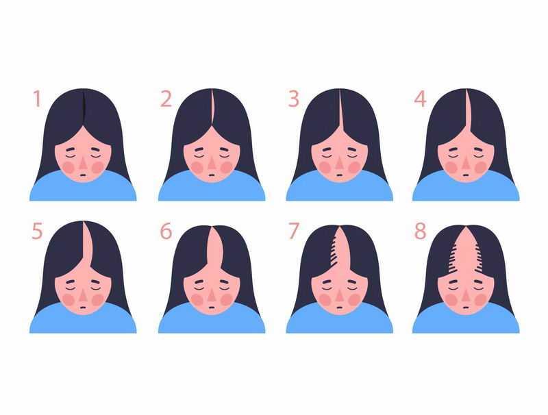 女性脱发等级示意图1222334图片免抠素材