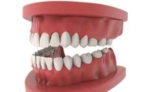 3D风格牙齿模型逼真医学模型道具9870854PSD图片免抠素材