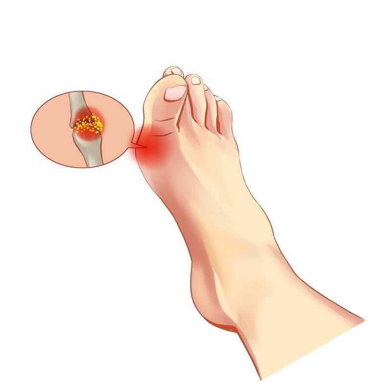 脚指头疼类风湿性关节炎8196301免抠图片素材