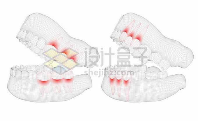黑色线条网格组成的3D立体风格牙疼人体牙齿结构示意图2275997矢量图片免抠素材