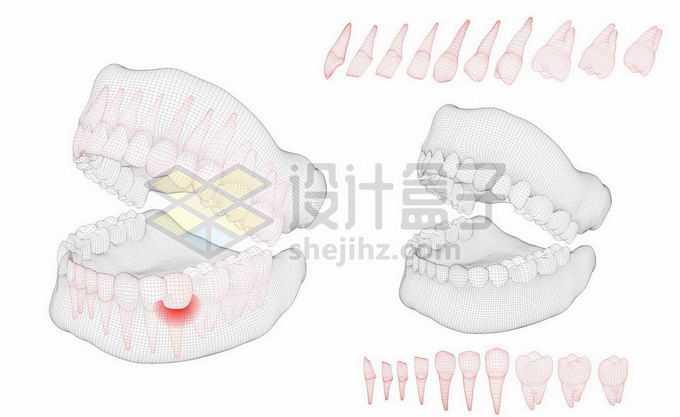 黑色线条网格组成的3D立体风格牙疼人体牙齿结构示意图9206305矢量图片免抠素材