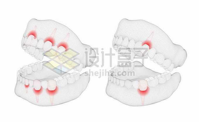 黑色线条网格组成的3D立体风格牙疼人体牙齿结构示意图1763912矢量图片免抠素材