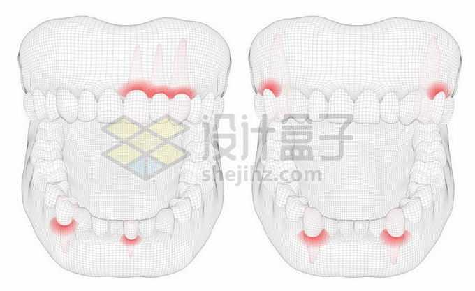 黑色线条网格组成的3D立体风格牙疼人体牙齿结构示意图4251207矢量图片免抠素材