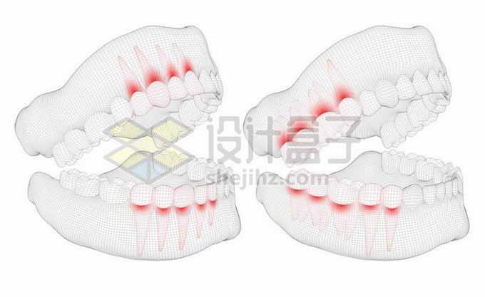 黑色线条网格组成的3D立体风格牙疼人体牙齿结构示意图9016381矢量图片免抠素材