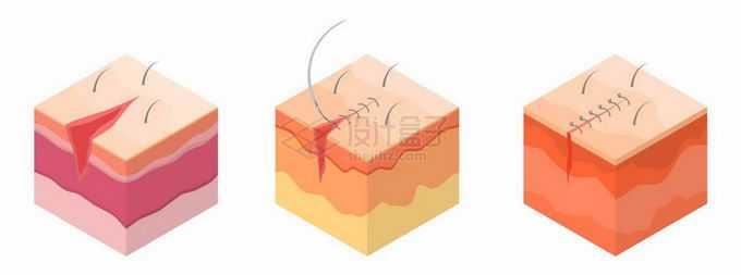 2.5D风格皮肤外伤缝合手术9196786矢量图片免抠素材