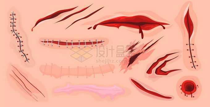 各种各样的擦伤割伤刀伤伤口和缝合手术线和疤痕伤疤效果4995634矢量图片免抠素材