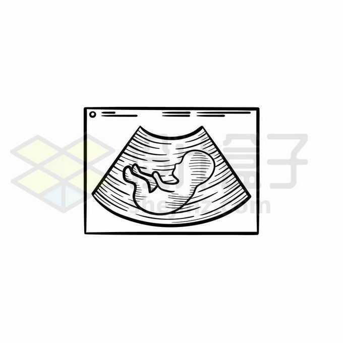 胎儿B超照片手绘线条插画1085558矢量图片免抠素材免费下载