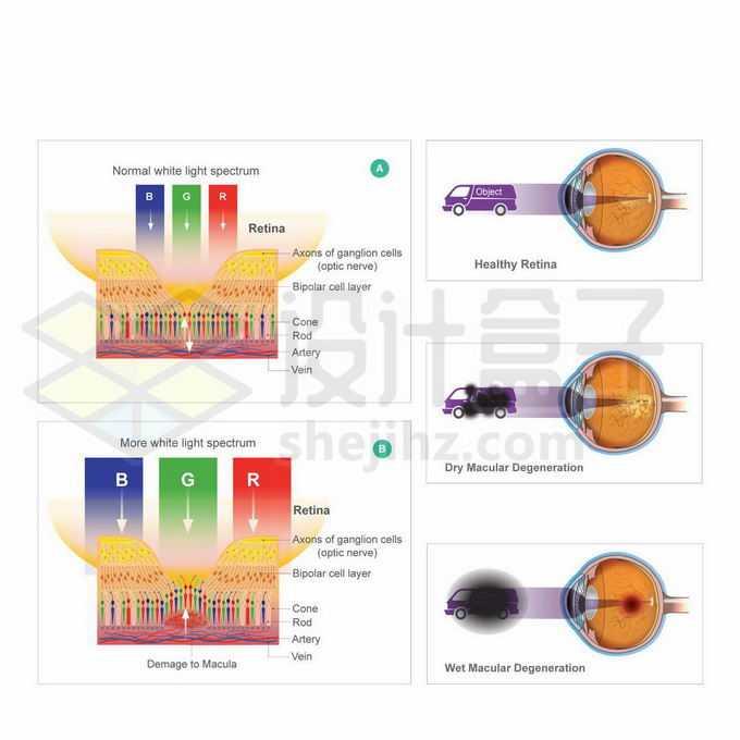 干性湿性黄斑变性眼睛视网膜病变健康示意图9417298矢量图片免抠素材免费下载
