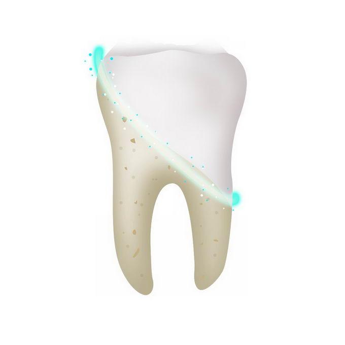 洁白牙齿前后对比图9444497免抠图片素材