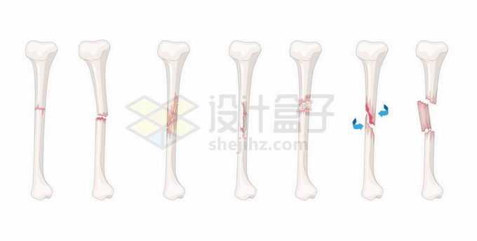 各种各样的胫骨骨折骨裂示意图7563973矢量图片免抠素材