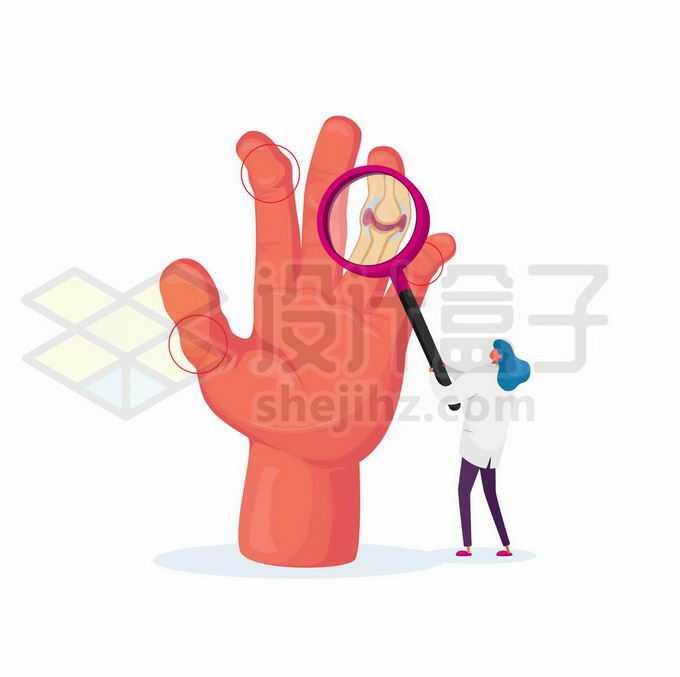 手指上的类风湿性关节炎示意图1189929矢量图片免抠素材