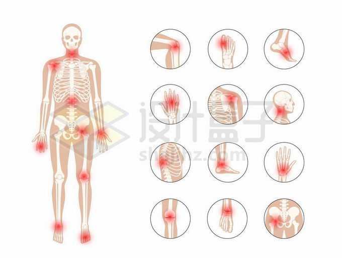男性人体骨架和类风湿性关节炎身体痛点示意图7738758矢量图片免抠素材