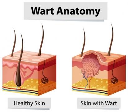人体皮肤组织毛囊粉刺疣体解剖图免扣图片素材