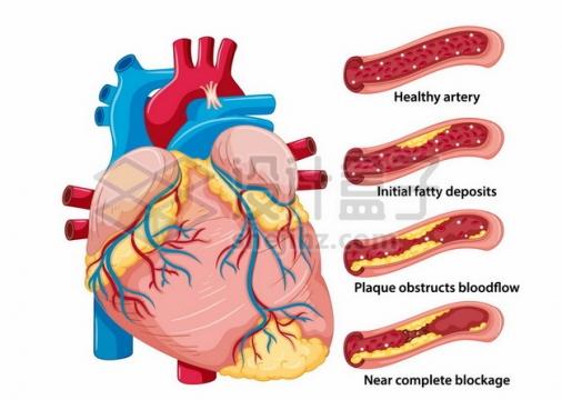 心脏和血管脂肪堆积心血管疾病人体器官组织921002png矢量图片素材