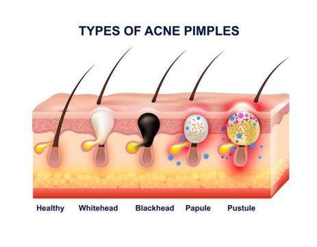 人体组织器官皮肤痤疮皮疹粉刺发病过程示意图免扣图片素材