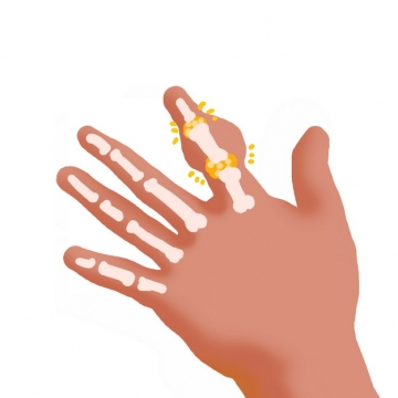 手指肿块类风湿性关节炎骨头疼插画940873png图片素材