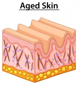 老化产生皱纹的皮肤组织结构解剖图免扣图片素材