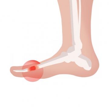 脚趾肿块类风湿性关节炎骨头疼插画873624png图片素材