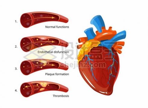 心脏和血管血栓形成过程示意图206672png矢量图片素材