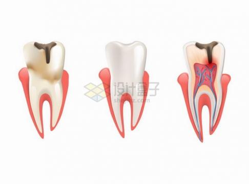 龋齿蛀牙龋洞解剖图牙齿保健png图片免抠矢量素材